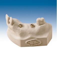 Sádra IV, klip Resin Gips Plus pro implantáty 12 kg, šedá barva