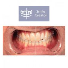 Modul Exocad Smile Creator